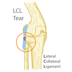 LCL Injuries
